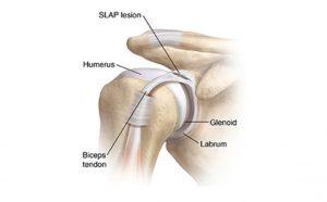 Βλάβες SLAP