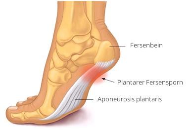 Πόνος στο πέλμα Πελματιαία Απονευρωσίτιδα